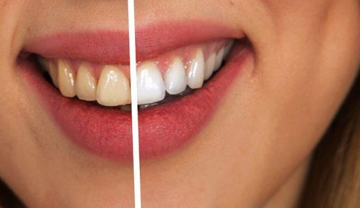 歯列矯正で辛かったことは?メリット・デメリットなど体験